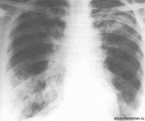 Синдром Вильямса-Кемпбелла_Рис1