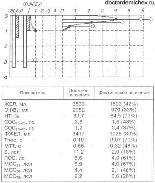Синдром Вильямса-Кемпбелла_Рис2