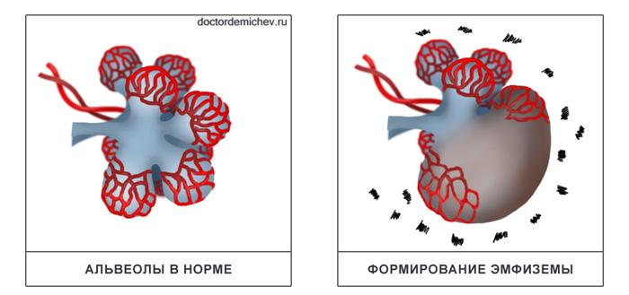 Формирование эмфиземы