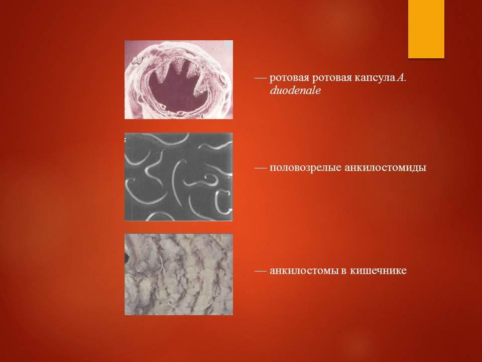 Гельминтозы тропиков_Слайд20