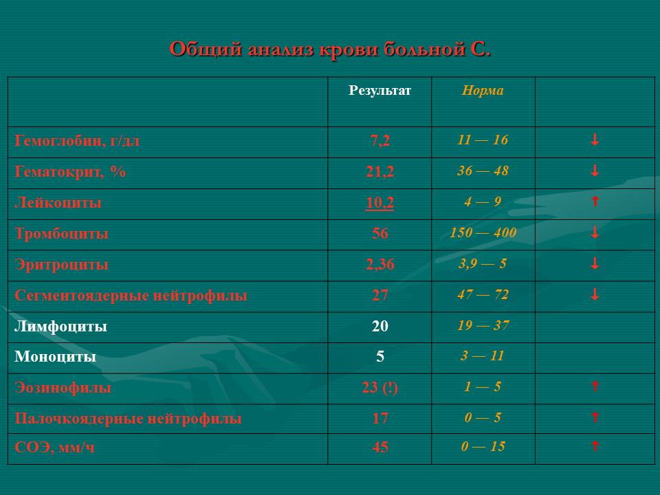 Острые_лейкозы_Слайд29